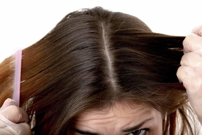 manfaat daun sirih merah untuk kesehatan rambut ketombe