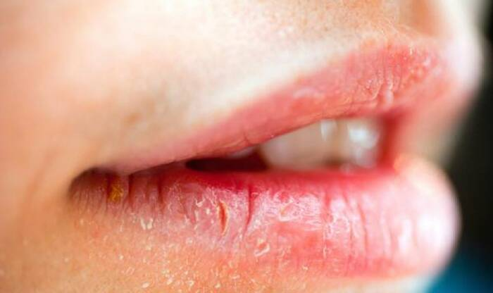 penyebab bibir pecah-pecah dan bibir kering