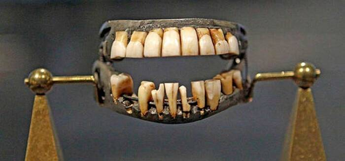 Gigi palsu yang diambil dari gigi manusia asli, prajurit di medan perang
