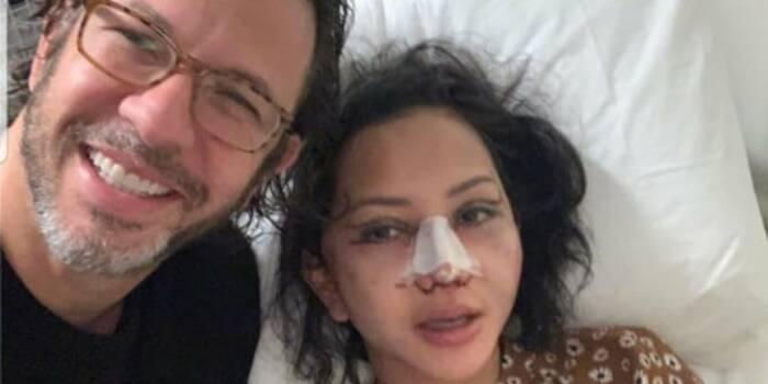 Jaksa Pinangki saat lakukan operasi kecantikan. (Instagram)