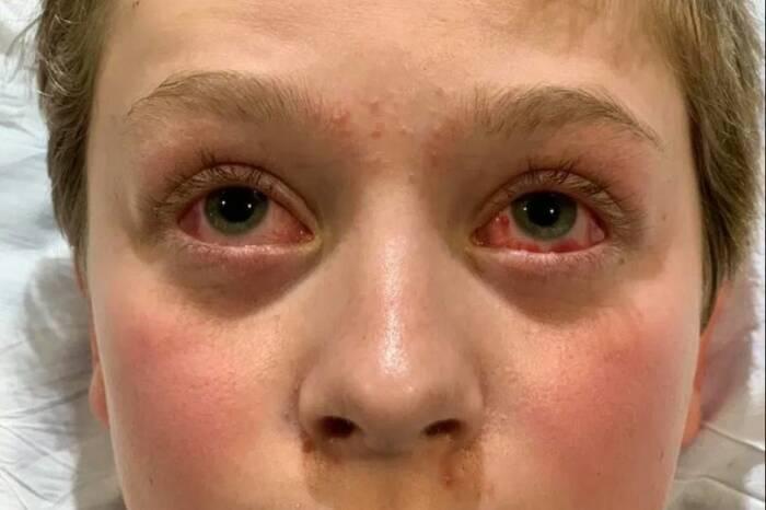 Mata merah akibat efek samping langkah virus corona