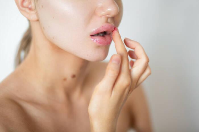 Cara Memerahkan Bibir Gelap Secara Permanen Dengan Bahan Alami Indozone Id